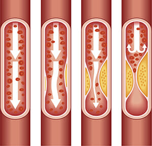 Examples of clogged arteries