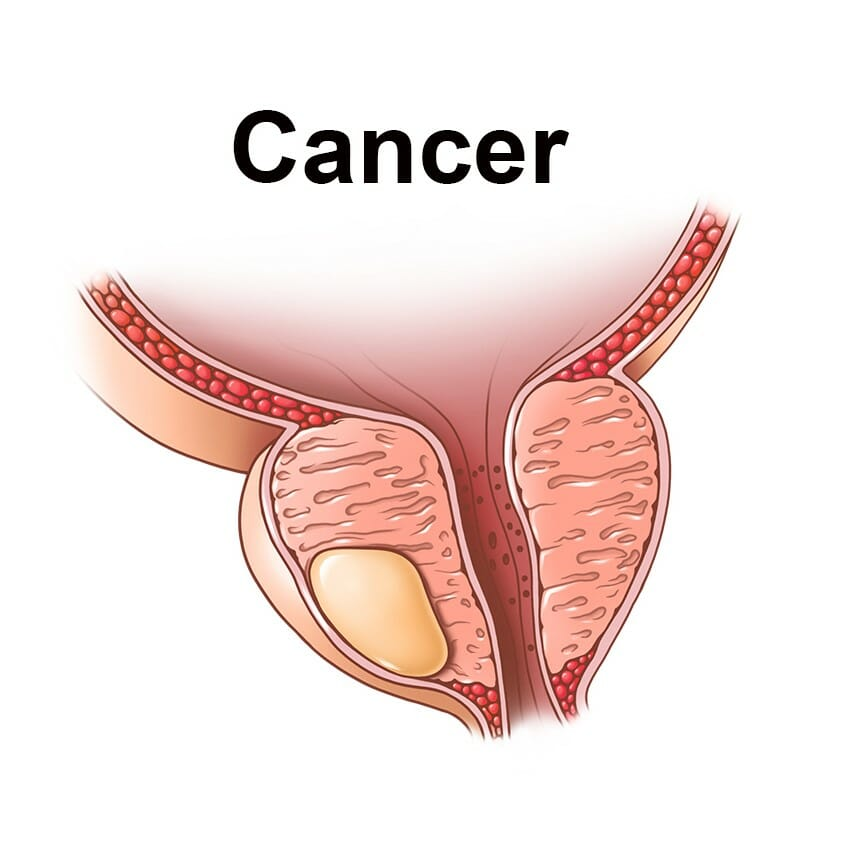 Prostate Cancer is slow, but serious.