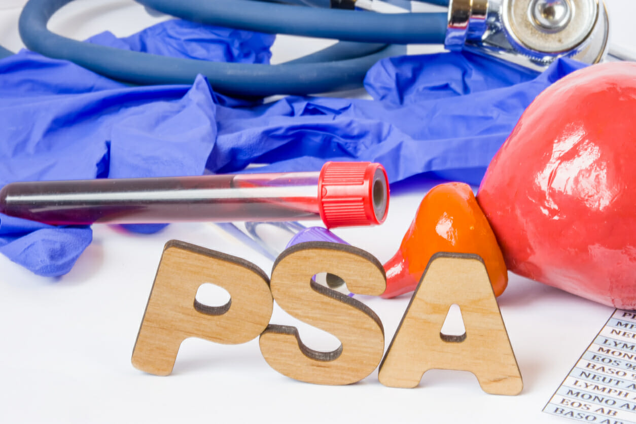 PSA Screening is not sureproof, but it can help you if approved by your doctor.