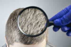 The Relationship Between Hydrogen Peroxide, Catalase and Gray Hair